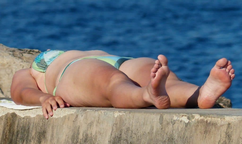 sun burnt lady after tanning